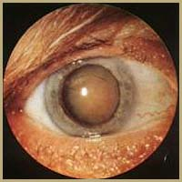 Senile nuclear cataract(cataracta brunescence)